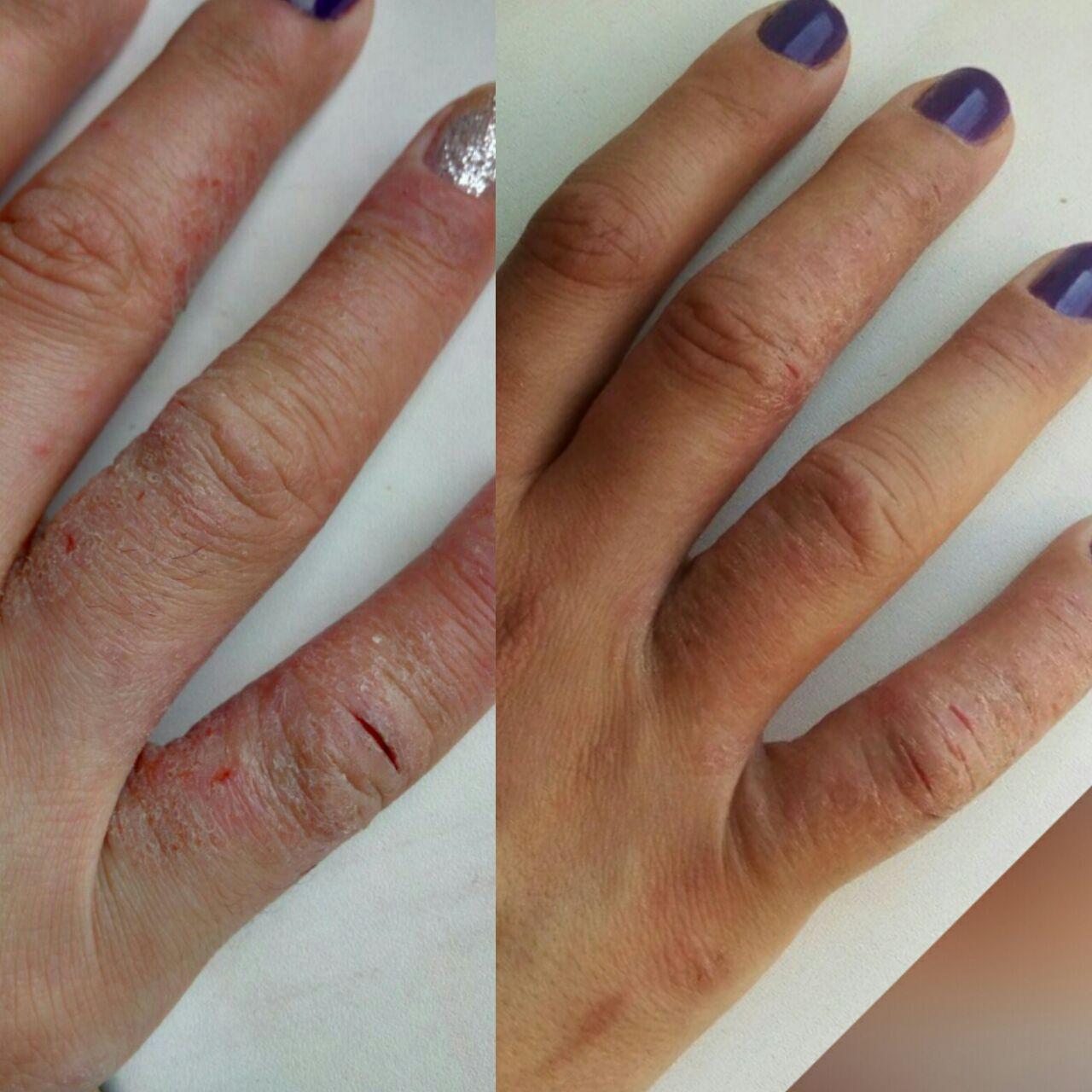 псориаз, до и после лечения